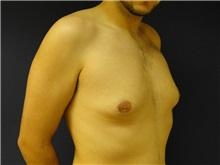 Male Breast Reduction Before Photo by Matthew Kilgo, MD, FACS; Garden City, NY - Case 28539