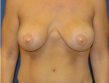 Breast Reconstruction After Photo by Matthew Kilgo, MD, FACS; Garden City, NY - Case 29132