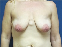 Breast Reconstruction Before Photo by Matthew Kilgo, MD, FACS; Garden City, NY - Case 29132