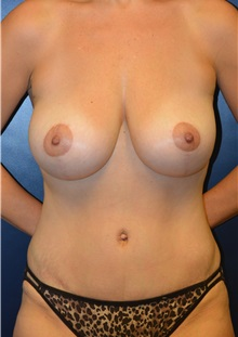 Breast Reduction After Photo by Matthew Kilgo, MD, FACS; Garden City, NY - Case 30333