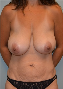 Breast Reduction Before Photo by Matthew Kilgo, MD, FACS; Garden City, NY - Case 30333