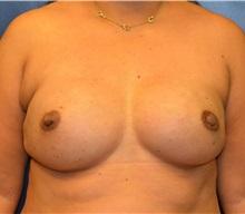 Breast Reconstruction After Photo by Matthew Kilgo, MD, FACS; Garden City, NY - Case 30340
