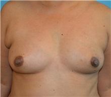 Breast Reconstruction Before Photo by Matthew Kilgo, MD, FACS; Garden City, NY - Case 30340