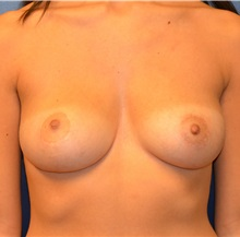 Breast Reduction After Photo by Matthew Kilgo, MD, FACS; Garden City, NY - Case 30341