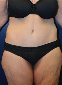 Body Lift After Photo by Matthew Kilgo, MD, FACS; Garden City, NY - Case 30343