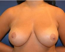 Breast Reduction After Photo by Matthew Kilgo, MD, FACS; Garden City, NY - Case 30344