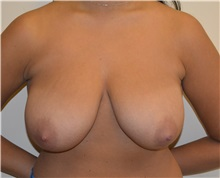 Breast Reduction Before Photo by Matthew Kilgo, MD, FACS; Garden City, NY - Case 30344