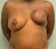 Breast Reconstruction Before Photo by Matthew Kilgo, MD, FACS; Garden City, NY - Case 30360