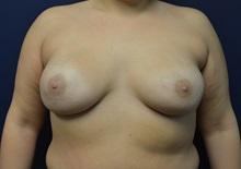 Breast Reconstruction After Photo by Matthew Kilgo, MD, FACS; Garden City, NY - Case 30362