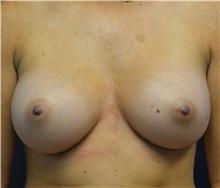 Breast Augmentation After Photo by Matthew Kilgo, MD, FACS; Garden City, NY - Case 30370