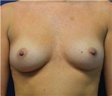 Breast Augmentation Before Photo by Matthew Kilgo, MD, FACS; Garden City, NY - Case 30370