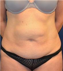 Tummy Tuck Before Photo by Matthew Kilgo, MD, FACS; Garden City, NY - Case 30376