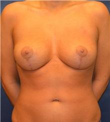 Breast Lift After Photo by Matthew Kilgo, MD, FACS; Garden City, NY - Case 33212