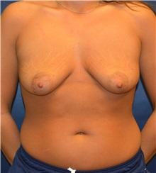 Breast Lift Before Photo by Matthew Kilgo, MD, FACS; Garden City, NY - Case 33212