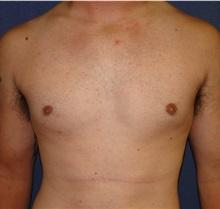 Male Breast Reduction After Photo by Matthew Kilgo, MD, FACS; Garden City, NY - Case 33213