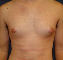 Male Breast Reduction Before Photo by Matthew Kilgo, MD, FACS; Garden City, NY - Case 33213