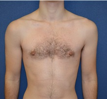 Male Breast Reduction After Photo by Matthew Kilgo, MD, FACS; Garden City, NY - Case 33214