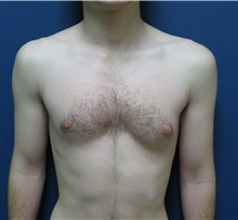 Male Breast Reduction Before Photo by Matthew Kilgo, MD, FACS; Garden City, NY - Case 33214