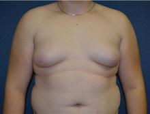 Male Breast Reduction Before Photo by Matthew Kilgo, MD, FACS; Garden City, NY - Case 33217