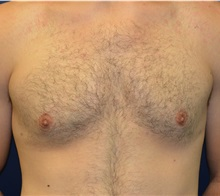 Male Breast Reduction After Photo by Matthew Kilgo, MD, FACS; Garden City, NY - Case 33219
