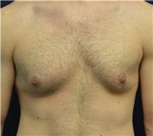 Male Breast Reduction Before Photo by Matthew Kilgo, MD, FACS; Garden City, NY - Case 33219