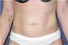Tummy Tuck Before Photo by Matthew Kilgo, MD, FACS; Garden City, NY - Case 33860