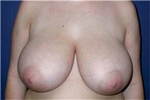 Breast Reduction Before Photo by Matthew Kilgo, MD, FACS; Garden City, NY - Case 33862