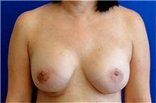 Breast Reconstruction After Photo by Matthew Kilgo, MD, FACS; Garden City, NY - Case 33863
