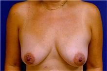 Breast Reconstruction Before Photo by Matthew Kilgo, MD, FACS; Garden City, NY - Case 33863