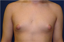 Male Breast Reduction Before Photo by Matthew Kilgo, MD, FACS; Garden City, NY - Case 33864