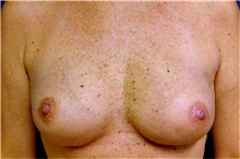 Breast Reconstruction After Photo by Matthew Kilgo, MD, FACS; Garden City, NY - Case 33869