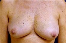 Breast Reconstruction Before Photo by Matthew Kilgo, MD, FACS; Garden City, NY - Case 33869