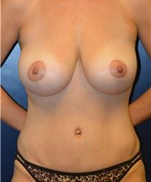 Tummy Tuck After Photo by Matthew Kilgo, MD, FACS; Garden City, NY - Case 33876