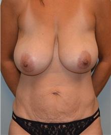 Tummy Tuck Before Photo by Matthew Kilgo, MD, FACS; Garden City, NY - Case 33876