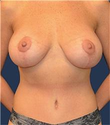 Breast Lift After Photo by Matthew Kilgo, MD, FACS; Garden City, NY - Case 33918