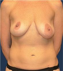 Breast Lift Before Photo by Matthew Kilgo, MD, FACS; Garden City, NY - Case 33918