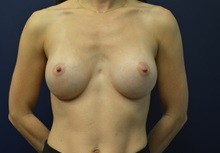 Breast Augmentation After Photo by Matthew Kilgo, MD, FACS; Garden City, NY - Case 35298
