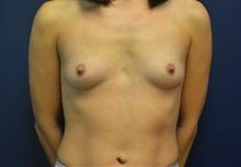 Breast Augmentation Before Photo by Matthew Kilgo, MD, FACS; Garden City, NY - Case 35298
