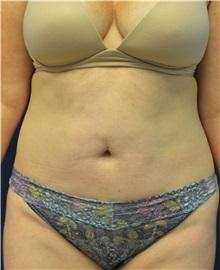 Tummy Tuck Before Photo by Matthew Kilgo, MD, FACS; Garden City, NY - Case 35302