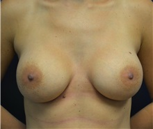 Breast Augmentation After Photo by Matthew Kilgo, MD, FACS; Garden City, NY - Case 35305