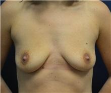 Breast Augmentation Before Photo by Matthew Kilgo, MD, FACS; Garden City, NY - Case 35305