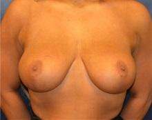 Breast Lift After Photo by Matthew Kilgo, MD, FACS; Garden City, NY - Case 35307