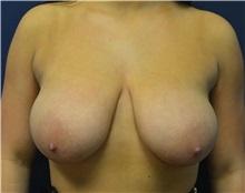 Breast Lift Before Photo by Matthew Kilgo, MD, FACS; Garden City, NY - Case 35307