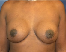 Breast Reconstruction After Photo by Matthew Kilgo, MD, FACS; Garden City, NY - Case 35313