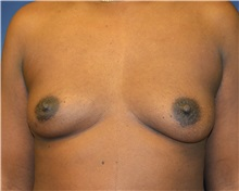 Breast Reconstruction Before Photo by Matthew Kilgo, MD, FACS; Garden City, NY - Case 35313