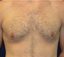 Male Breast Reduction After Photo by Matthew Kilgo, MD, FACS; Garden City, NY - Case 35314