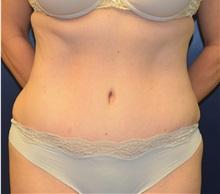 Tummy Tuck After Photo by Matthew Kilgo, MD, FACS; Garden City, NY - Case 35315