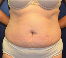 Tummy Tuck Before Photo by Matthew Kilgo, MD, FACS; Garden City, NY - Case 35315