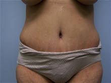 Tummy Tuck After Photo by Amy Bandy, DO, FACS; Newport Beach, CA - Case 27664