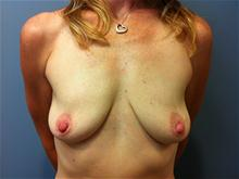 Breast Lift Before Photo by Amy Bandy, DO, FACS; Newport Beach, CA - Case 27666